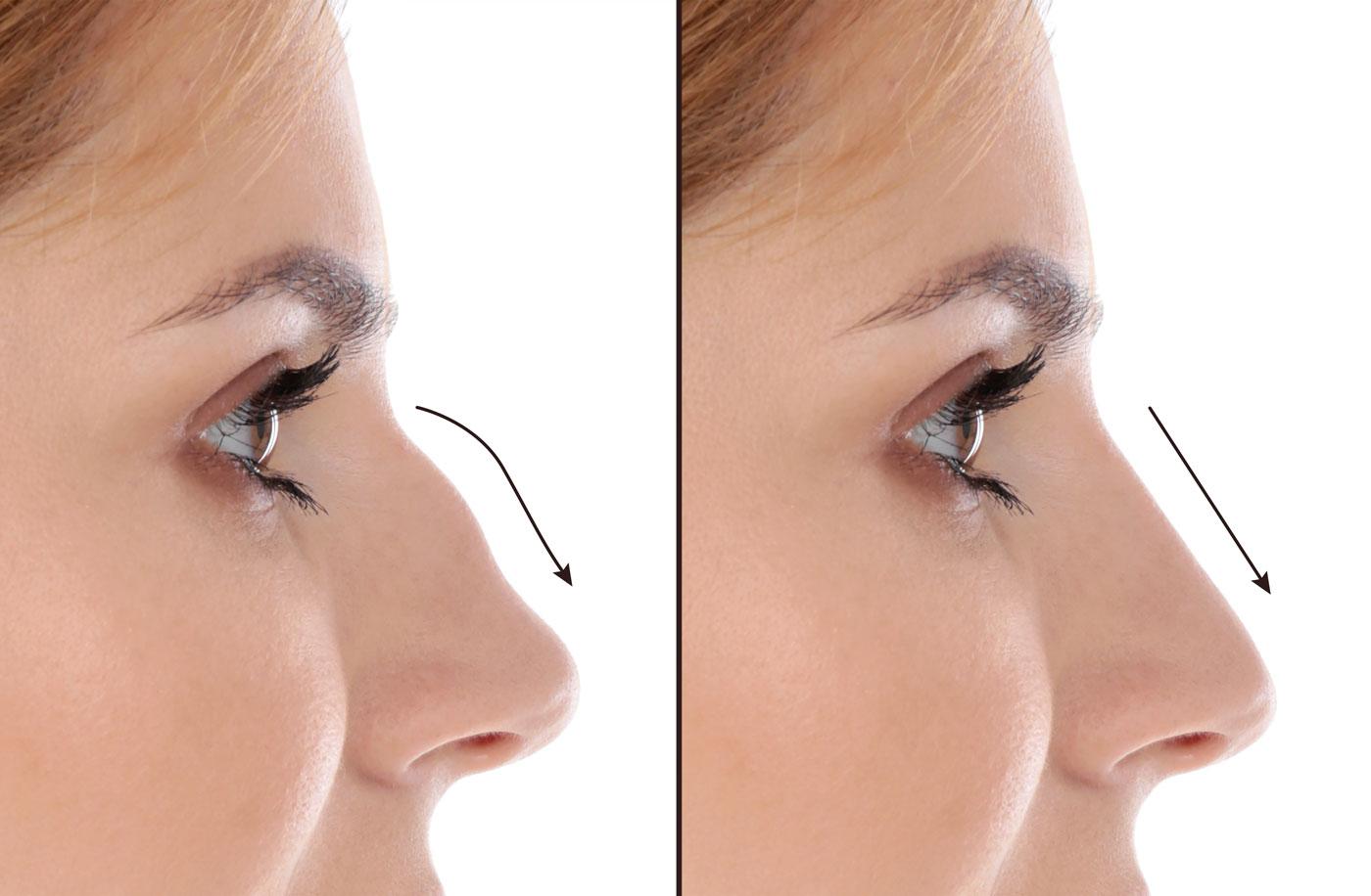 Nasenkorrekturen ohne OP - facial beauty aesthetics